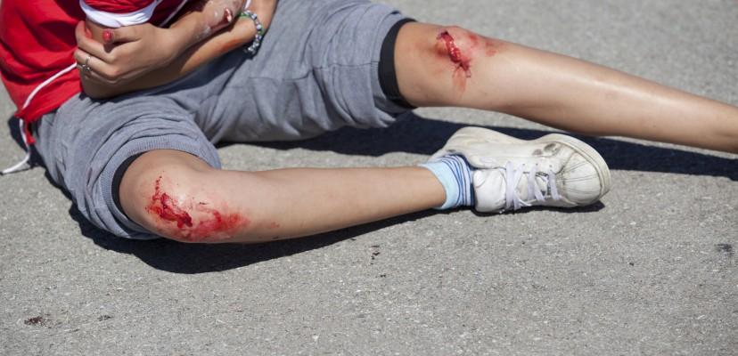 Πρόκληση σωματικής βλάβης από αμέλεια σε τροχαίο ατύχημα